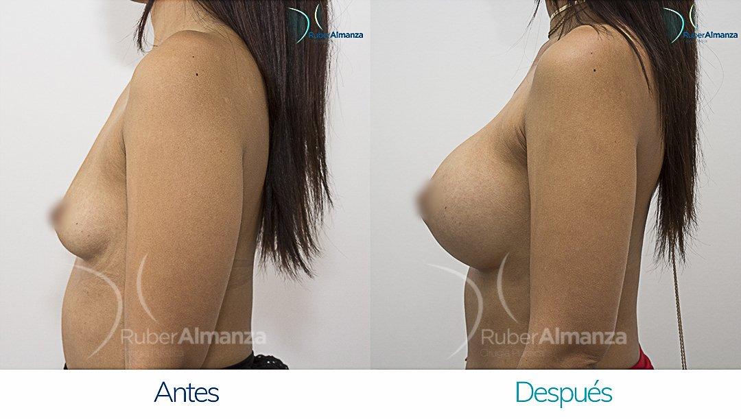 Mamoplastia De Aumento Antes y despues Bogota Ruber Almanza PD Lateral Izquierdo