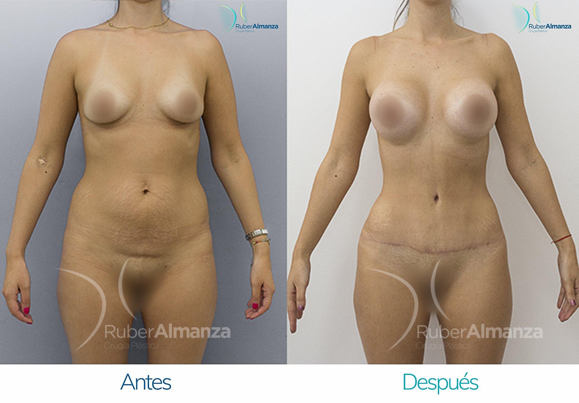 Abdominoplastia Ruber Almanza Bogotá