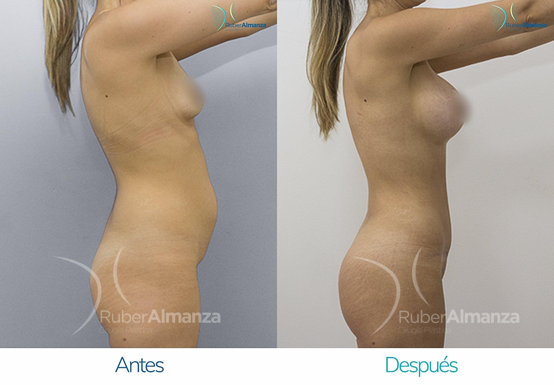 Abdominoplastia 2 Ruber Almanza Bogotá