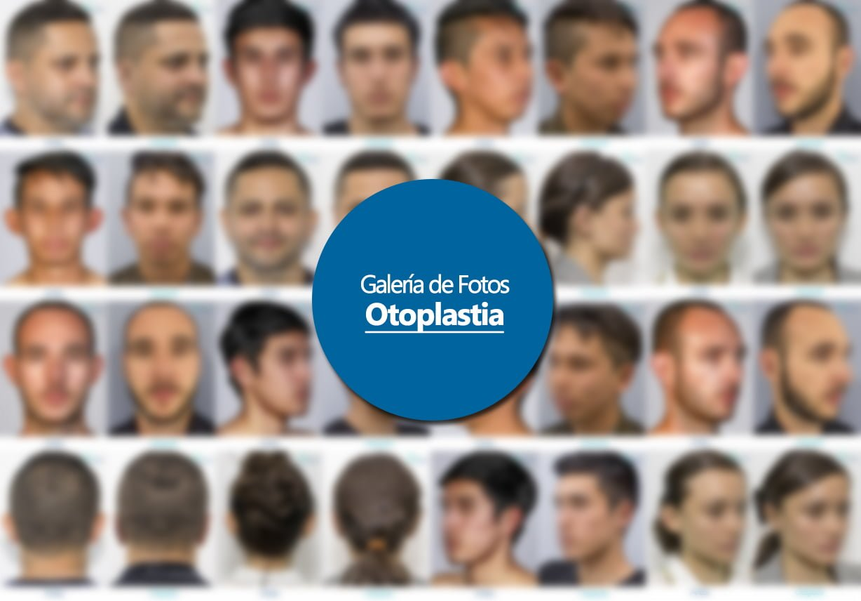 Galeria botón Cirugías SEO Otoplastia