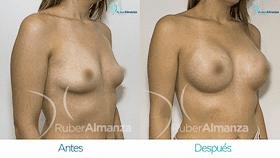 antes-y-despus-mamoplastia-de-aumento-ruber-almanza-bogota-colombia-mae-diagonal-derecho280x158