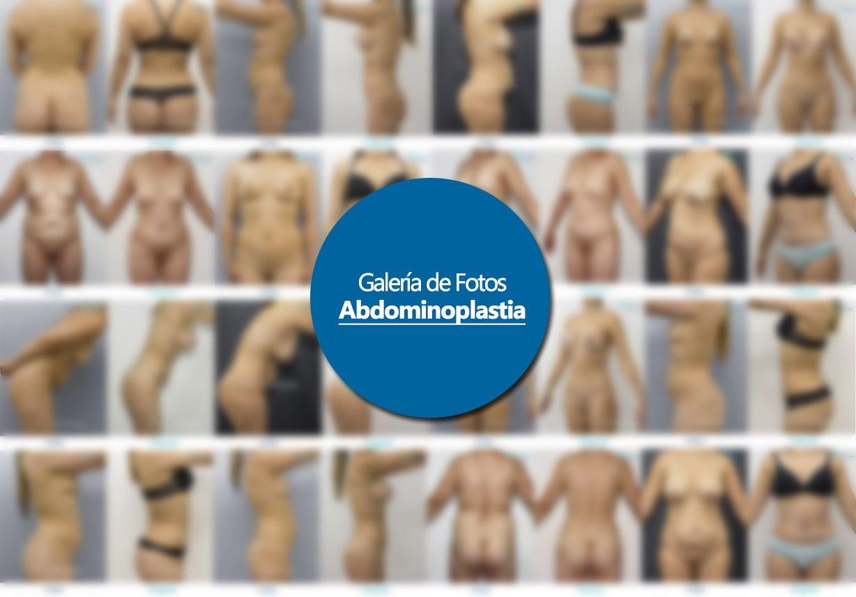 Abdominoplastia Bogotá Ruber Almanza Cirugía Plástica