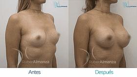 mamoplastia-de-aumento-antes-y-despues-bogota-ruber-almanza-dg-diagonal-derecho280x158