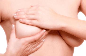 mamoplastia-de-aumento364x236