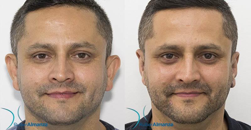 antes-y-despues-otoplastia-bogota-dr-ruber-almanza-colombia-cirujano-plastico