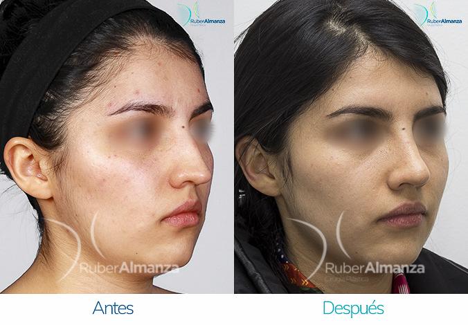 antes-y-despues-rinoplastia-bogota-colombia-dr-ruber-almanza-kadb-diagonal-derecho