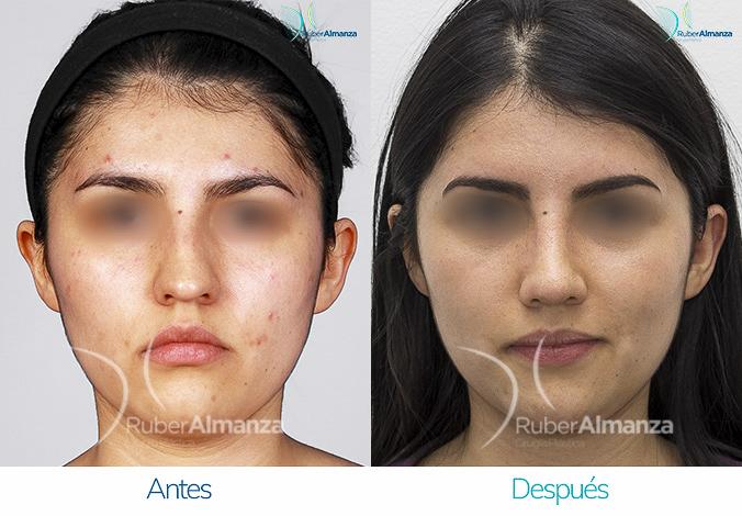 antes-y-despues-rinoplastia-bogota-colombia-dr-ruber-almanza-kadb-frontal