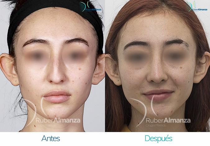antes-y-despues-rinoplastia-bogota-colombia-dr-ruber-almanza-ladj-frontal