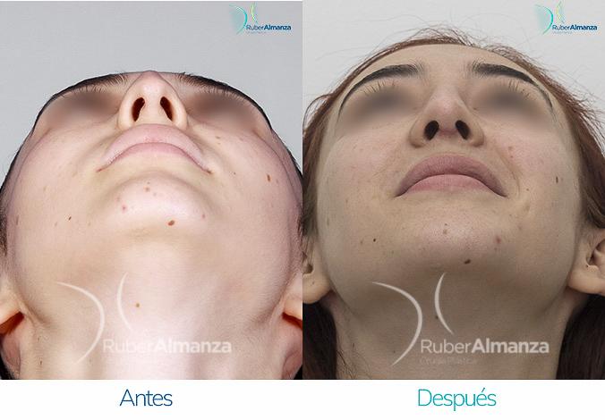 antes-y-despues-rinoplastia-bogota-colombia-dr-ruber-almanza-ladj-inferior