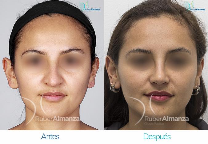 antes-y-despues-rinoplastia-bogota-colombia-dr-ruber-almanza-lameag-frontal