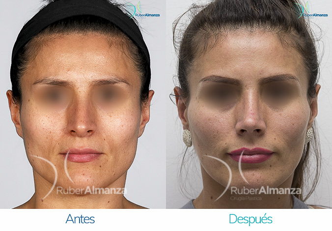 antes-y-despues-rinoplastia-bogota-colombia-dr-ruber-almanza-lamlss-frontal