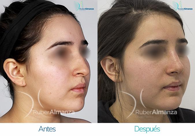 antes-y-despues-rinoplastia-bogota-colombia-dr-ruber-almanza-lanf-diagonal-derecho