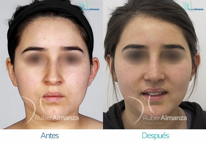 antes-y-despues-rinoplastia-bogota-colombia-dr-ruber-almanza-lanf-frontal