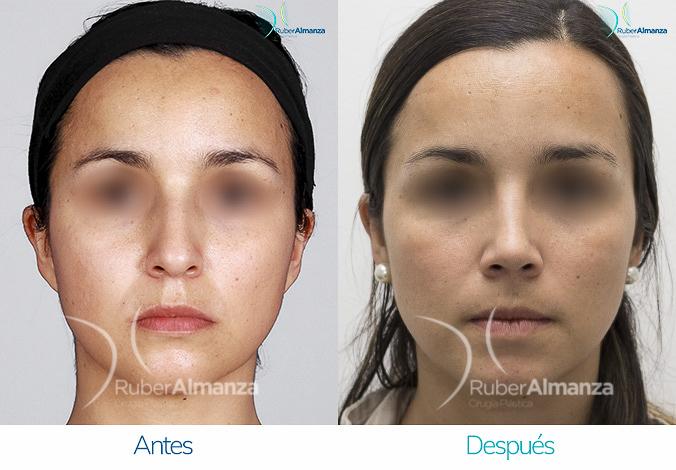 antes-y-despues-rinoplastia-bogota-colombia-dr-ruber-almanza-ljmz-frontal