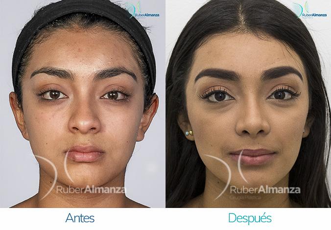 antes-y-despues-rinoplastia-bogota-colombia-dr-ruber-almanza-lupida-frontal-derecho