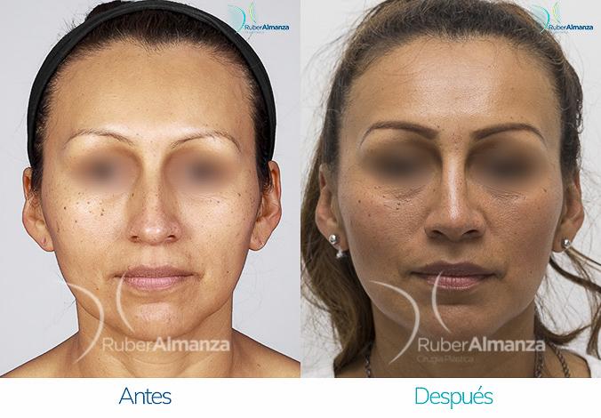 antes-y-despues-rinoplastia-bogota-colombia-dr-ruber-almanza-maho-frontal