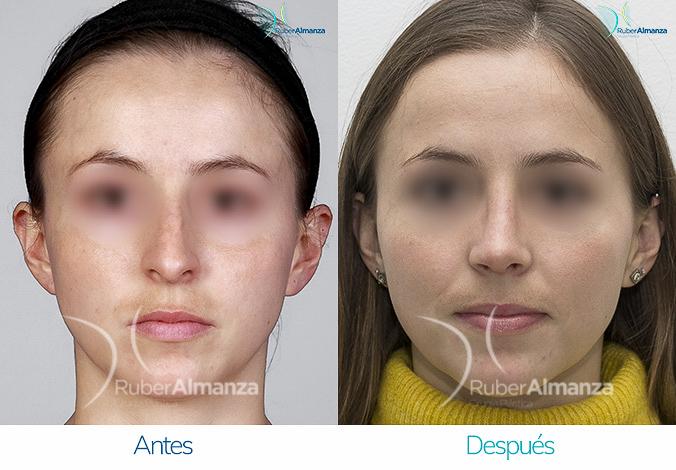 antes-y-despues-rinoplastia-bogota-colombia-dr-ruber-almanza-mapao-frontal