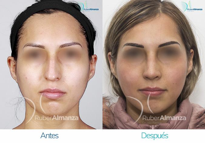 antes-y-despues-rinoplastia-bogota-colombia-dr-ruber-almanza-masona-frontal