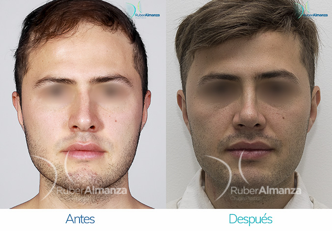 antes-y-despues-rinoplastia-bogota-colombia-dr-ruber-almanza-mavela-frontal
