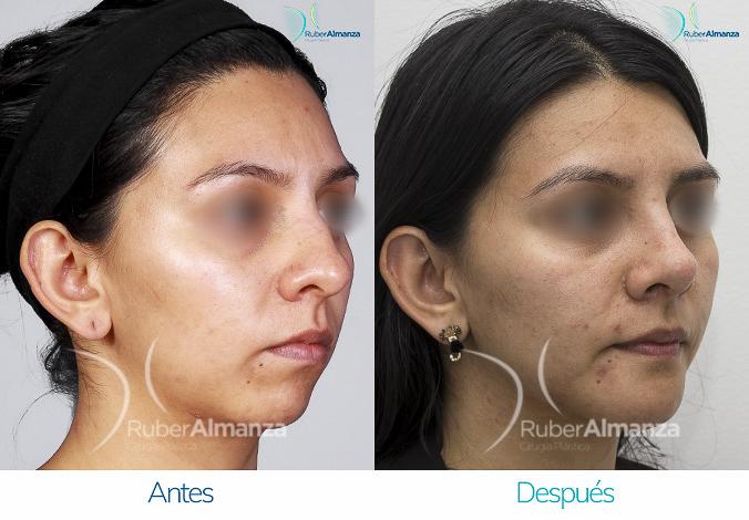 antes-y-despues-rinoplastia-bogota-colombia-dr-ruber-almanza-mb-diagonal-derecho