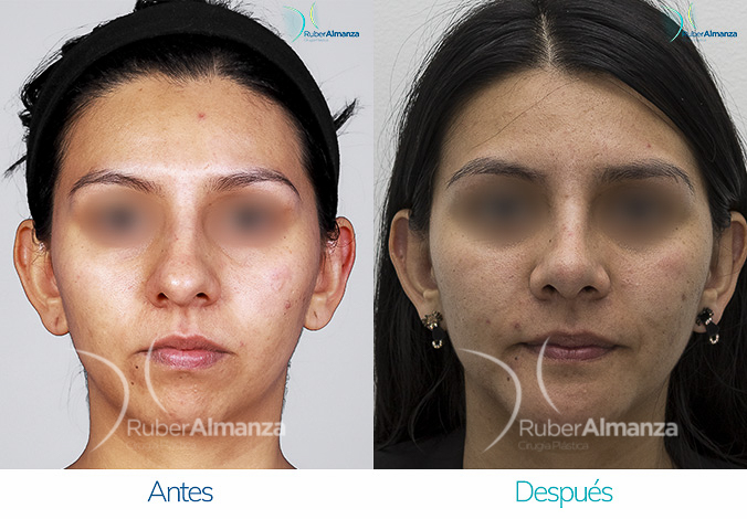 antes-y-despues-rinoplastia-bogota-colombia-dr-ruber-almanza-mb-frontal