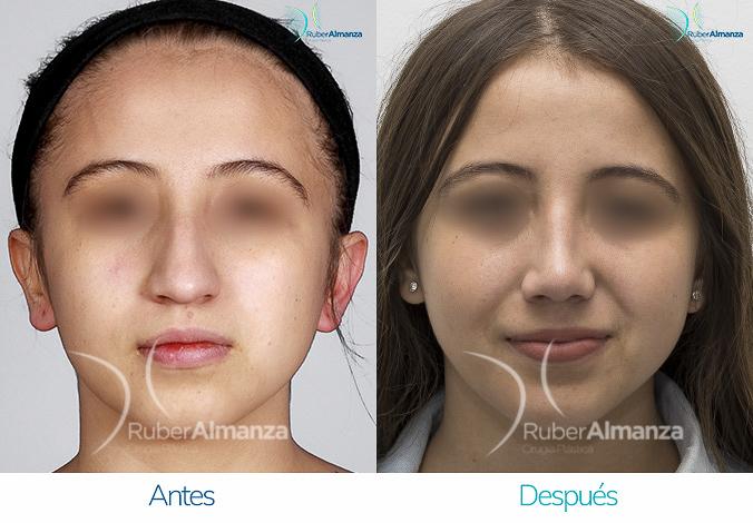 antes-y-despues-rinoplastia-bogota-colombia-dr-ruber-almanza-mcmes-frontal