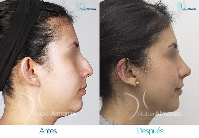 antes-y-despues-rinoplastia-bogota-colombia-dr-ruber-almanza-mjd-derecho