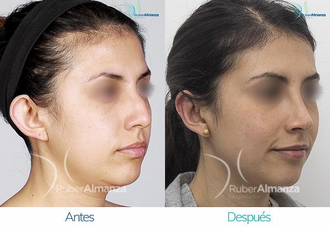 antes-y-despues-rinoplastia-bogota-colombia-dr-ruber-almanza-mjd-diagonal-derecho