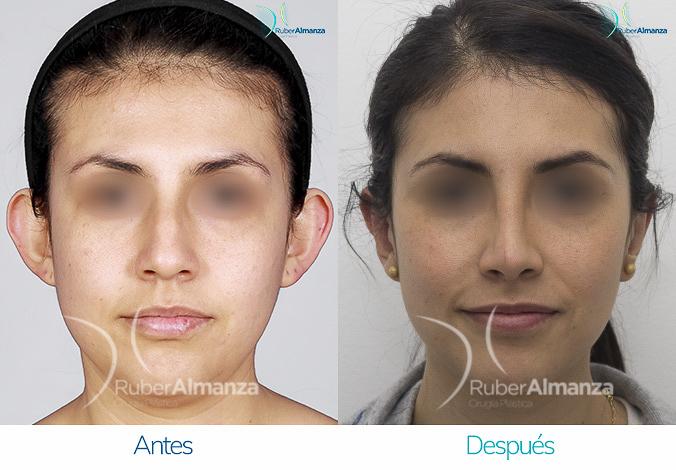 antes-y-despues-rinoplastia-bogota-colombia-dr-ruber-almanza-mjd-frontal