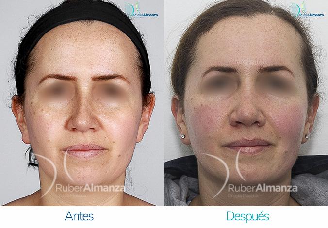 antes-y-despues-rinoplastia-bogota-colombia-dr-ruber-almanza-moto-frontal