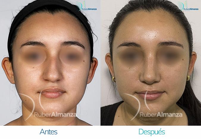 antes-y-despues-rinoplastia-bogota-colombia-dr-ruber-almanza-na-bez-frontal