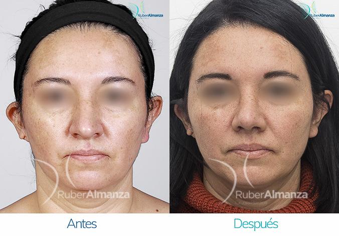 antes-y-despues-rinoplastia-bogota-colombia-dr-ruber-almanza-nabau-frontal