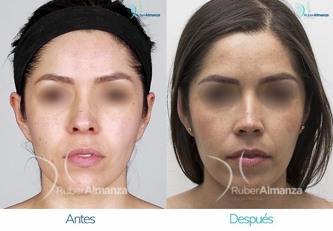 antes-y-despues-rinoplastia-bogota-colombia-dr-ruber-almanza-nalm-frontal