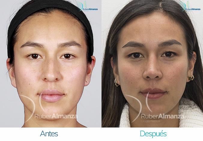antes-y-despues-rinoplastia-bogota-colombia-dr-ruber-almanza-natir-frontal