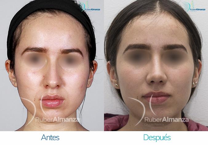 antes-y-despues-rinoplastia-bogota-colombia-dr-ruber-almanza-nccho-frontal