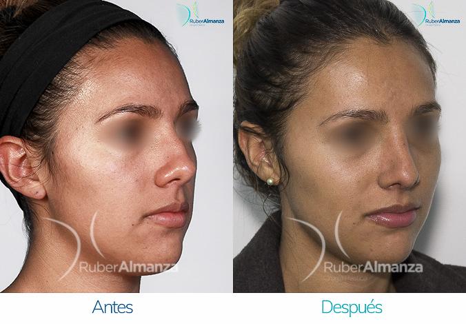 antes-y-despues-rinoplastia-bogota-colombia-dr-ruber-almanza-nrna-diagonal-derecho