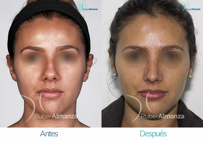 antes-y-despues-rinoplastia-bogota-colombia-dr-ruber-almanza-nrna-frontal