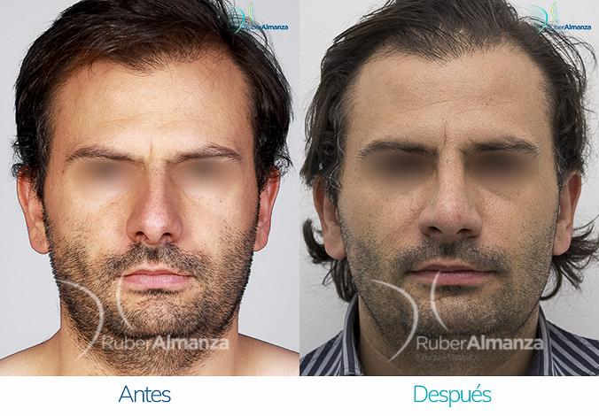 antes-y-despues-rinoplastia-bogota-colombia-dr-ruber-almanza-nrollo-diagonal-derecho