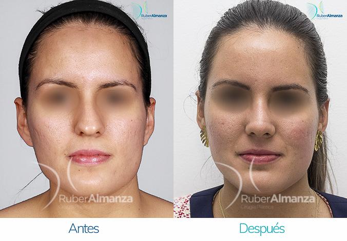 antes-y-despues-rinoplastia-bogota-colombia-dr-ruber-almanza-pames-frontal
