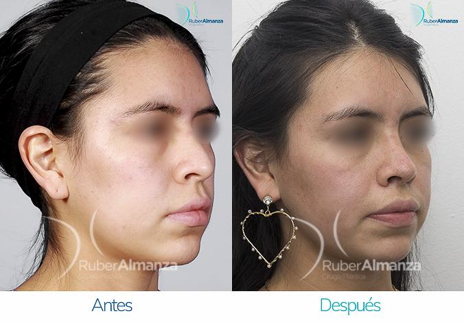 antes-y-despues-rinoplastia-bogota-colombia-dr-ruber-almanza-pavas-diagonal-derecho