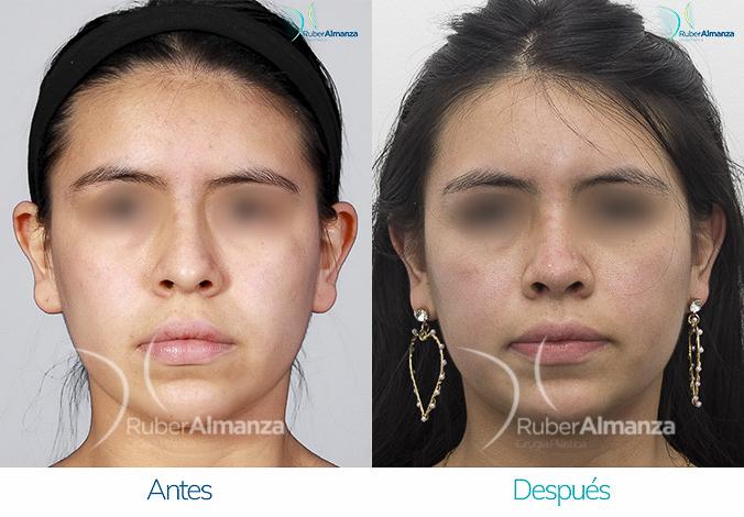 antes-y-despues-rinoplastia-bogota-colombia-dr-ruber-almanza-pavas-frontal