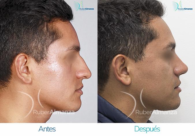 antes-y-despues-rinoplastia-bogota-colombia-dr-ruber-almanza-ptres-derecho