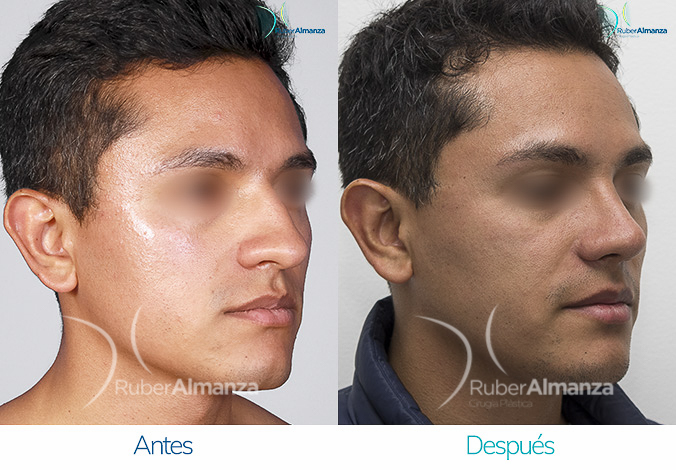 antes-y-despues-rinoplastia-bogota-colombia-dr-ruber-almanza-ptres-diagonal-derecho