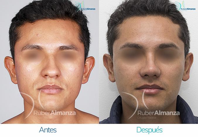 antes-y-despues-rinoplastia-bogota-colombia-dr-ruber-almanza-ptres-frontal