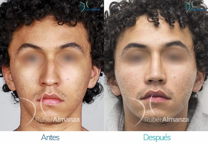 antes-y-despues-rinoplastia-bogota-colombia-dr-ruber-almanza-salez-frontal