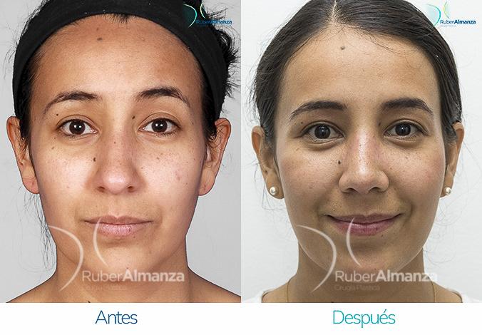 antes-y-despues-rinoplastia-bogota-colombia-dr-ruber-almanza-sargam-frontal