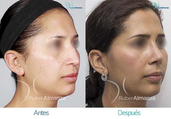 antes-y-despues-rinoplastia-bogota-colombia-dr-ruber-almanza-smv-diagonal-derecho