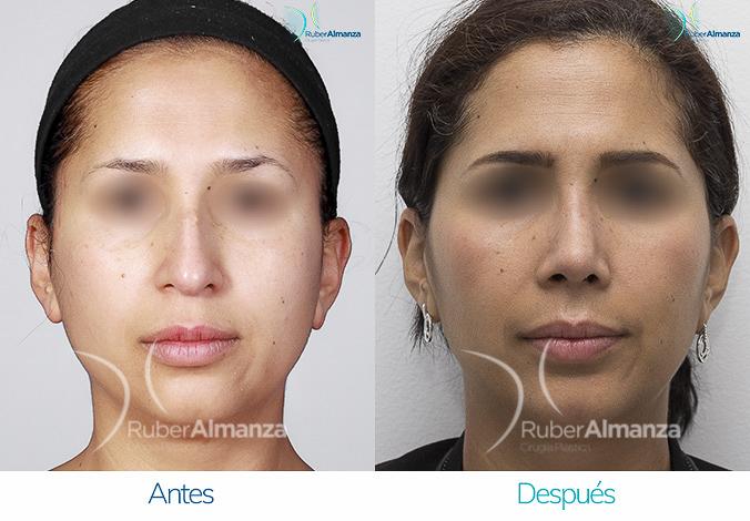 antes-y-despues-rinoplastia-bogota-colombia-dr-ruber-almanza-smv-frontal