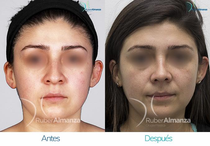 antes-y-despues-rinoplastia-bogota-colombia-dr-ruber-almanza-srez-frontal