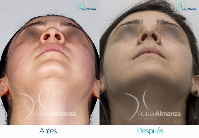 antes-y-despues-rinoplastia-bogota-colombia-dr-ruber-almanza-srez-inferior
